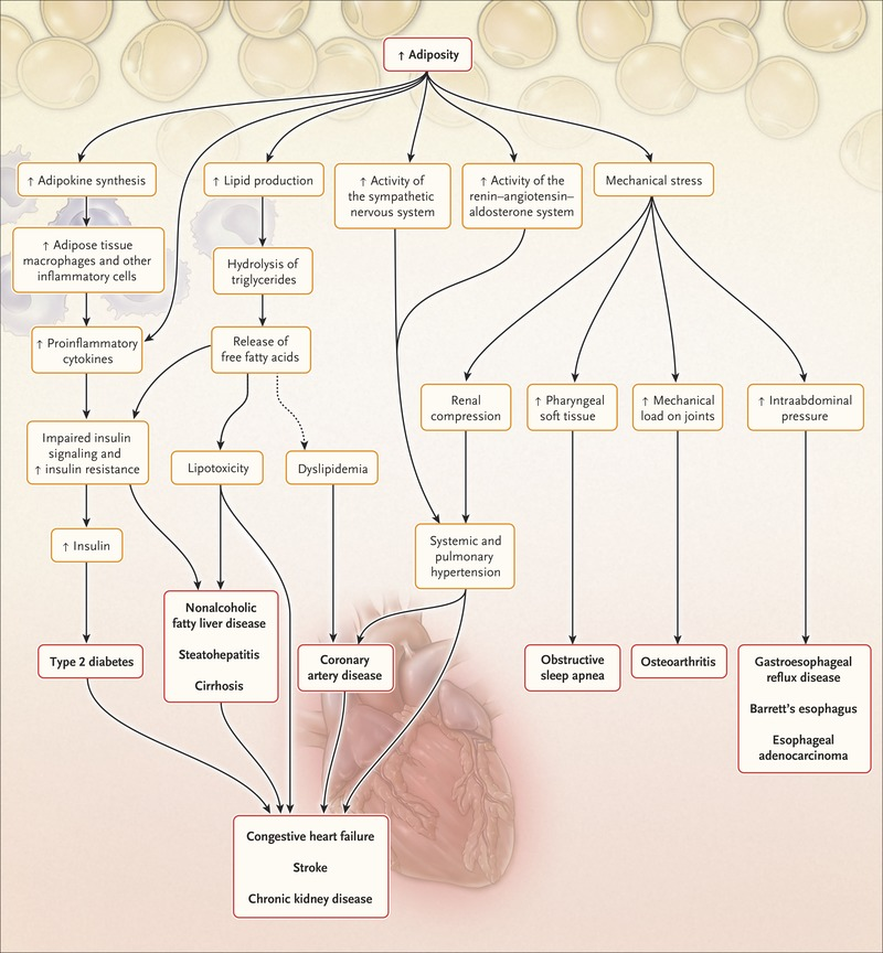 Mechanisms Pathophysiology And Management Of Obesity Nejm
