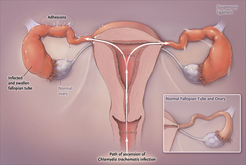 what is chlamydia trachomatis