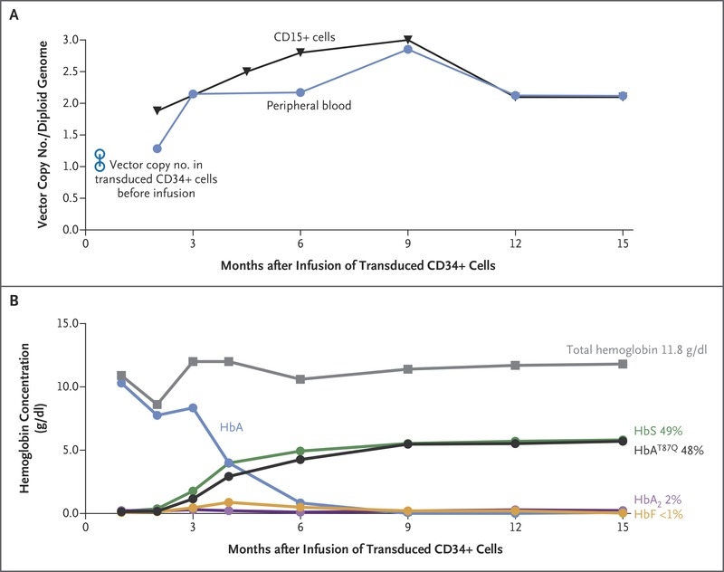 Gene Therapy in a Patient with Sickle Cell Disease | NEJM