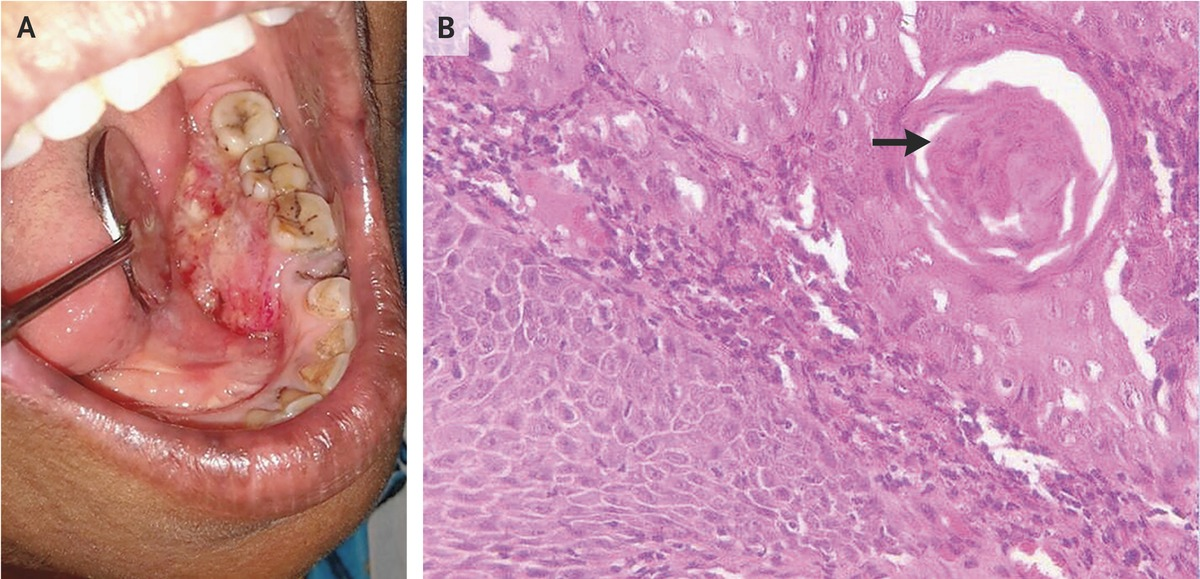 squamous cell cancer of the oral tongue