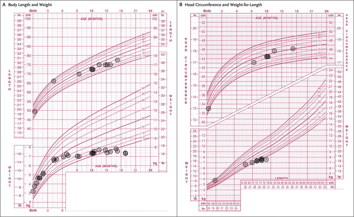 Case 31 2017 a 19 month old girl with failure to thrive nejm growth chartsown are the patients growth charts which include data on body length and weight panel a and head circumference and weight for length nvjuhfo Images