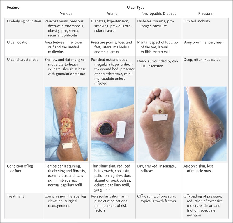 Evaluation and Management of Lower-Extremity Ulcers | NEJM