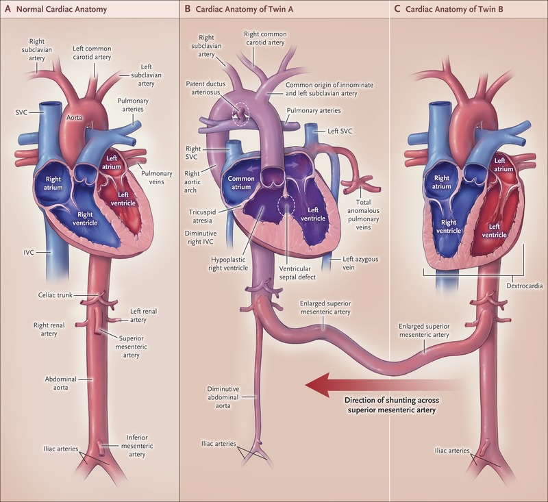 Case 33-2017 — 22-Month-Old Conjoined Twins | NEJM