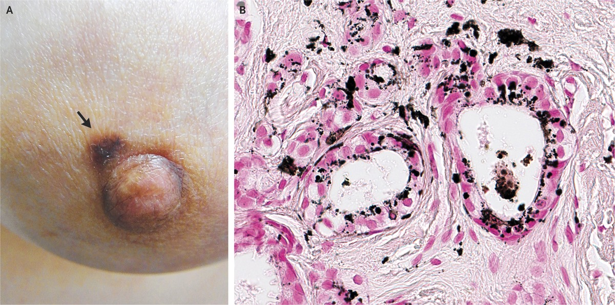 Pigmented Macule A Skin Manifestation Of Invasive Breast Cancer Nejm