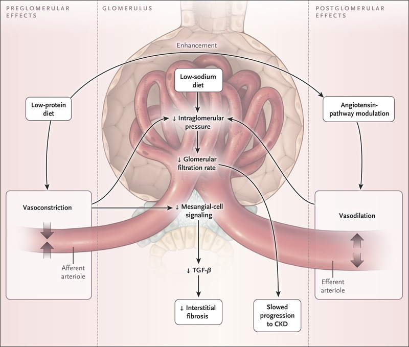 A Lower Intake Of Dietary Protein Leads To Greater Constriction The Afferent Arteriole Thus Low Diet Results In