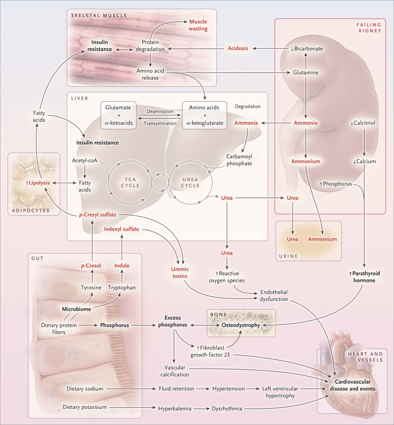 Nutritional Management Of Chronic Kidney Disease Nejm