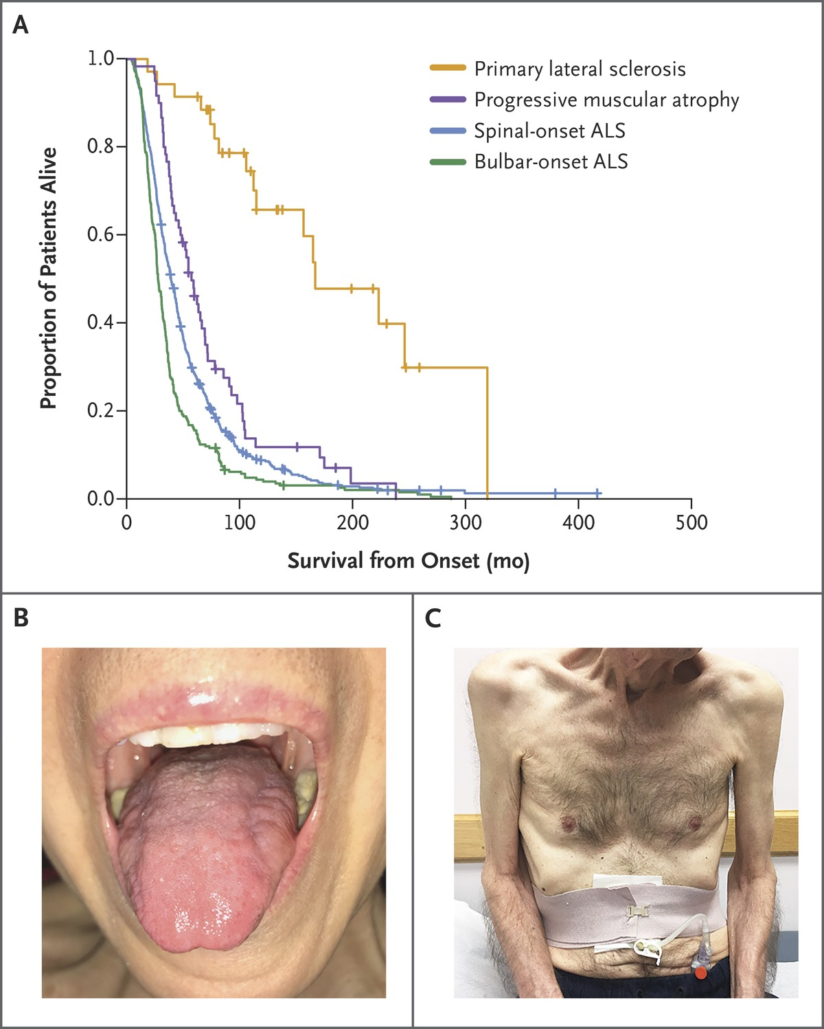 Phenotype And Survival In Amyotrophic Lateral Sclerosis Als