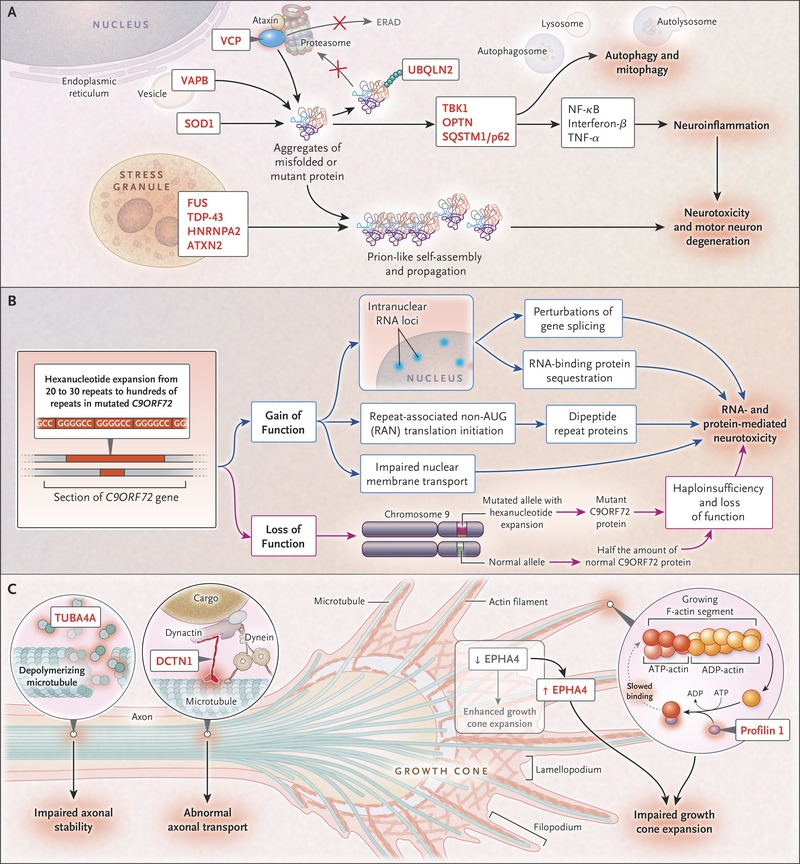 Amyotrophic Lateral Sclerosis | NEJM