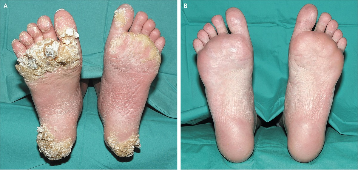 Severe Plantar Warts In An Immunocompromised Patient Nejm