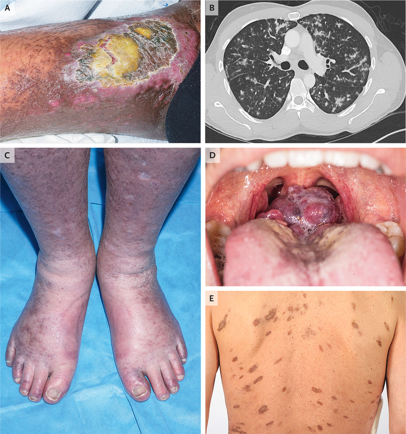 HIV-Associated Cancers and Related Diseases | NEJM