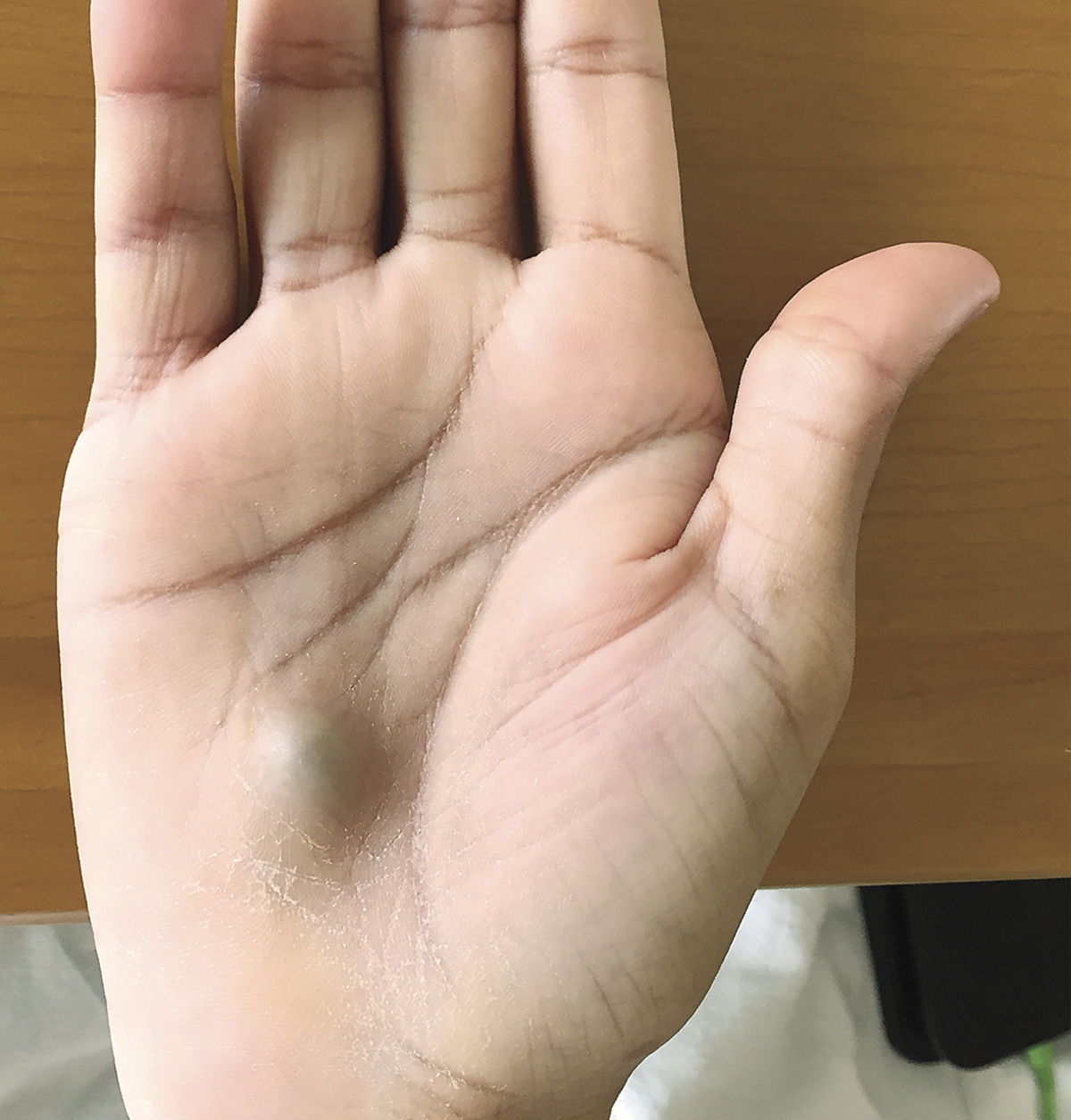 Man's Hand Lump Found After Dental Procedure Turns Out To