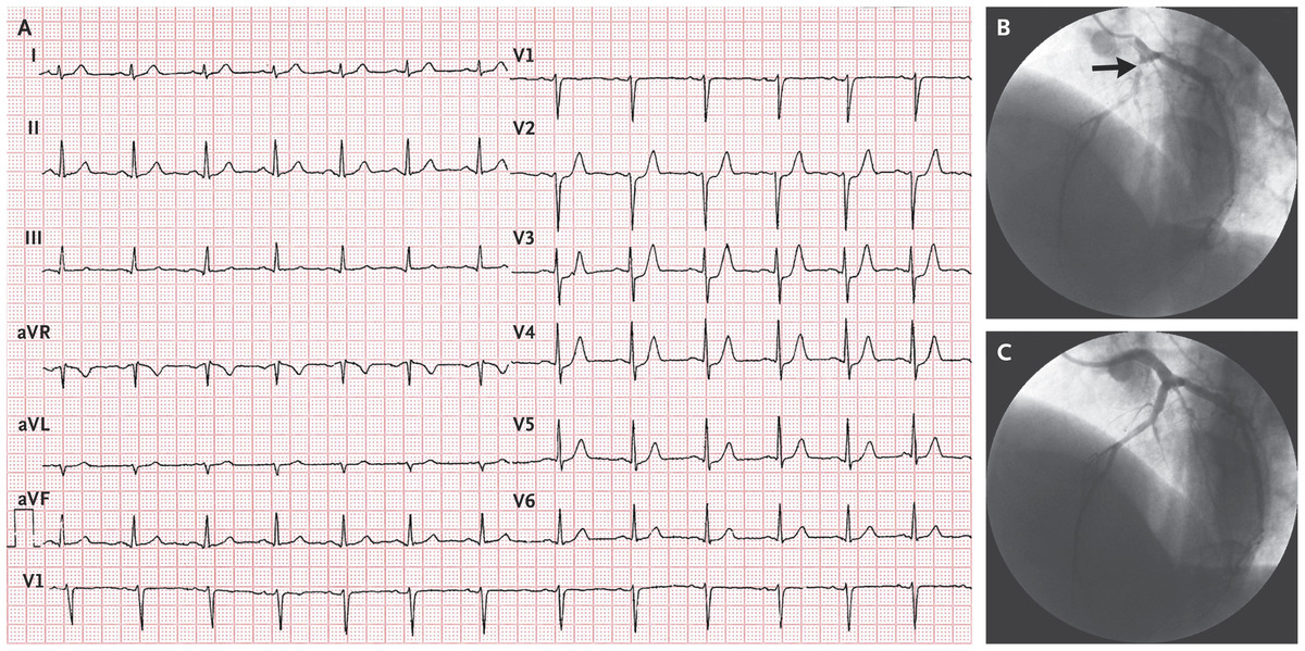 Ecg Pattern Associated With Left Anterior Descending Coronary Artery