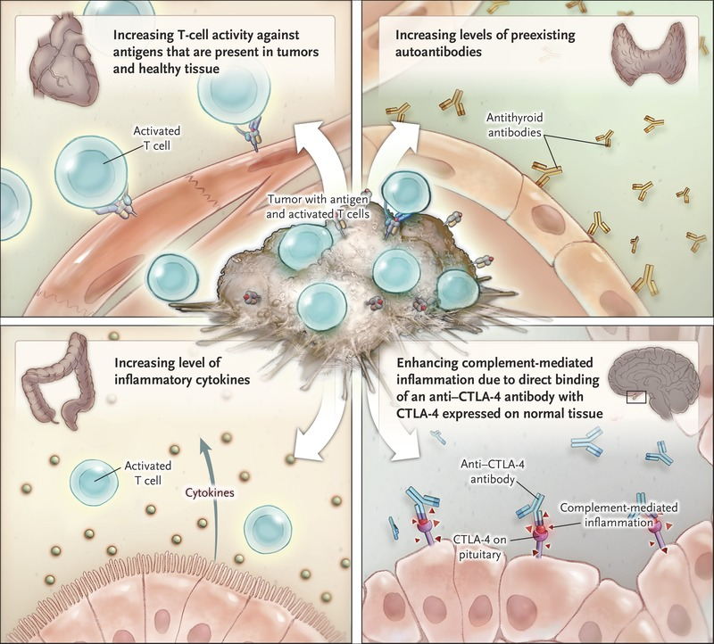 Immune-Related Adverse Events Associated with Immune