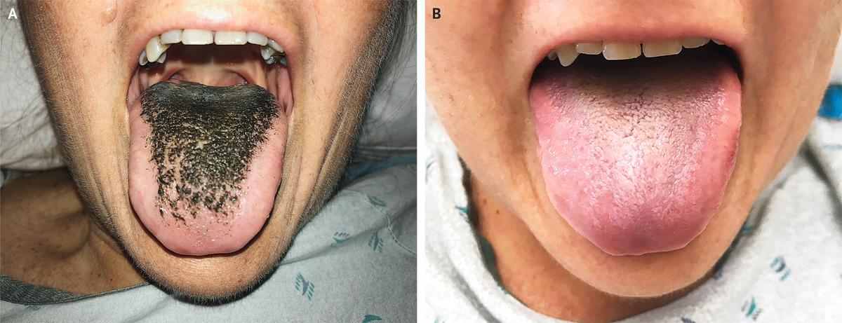 Black Hairy Tongue Nejm