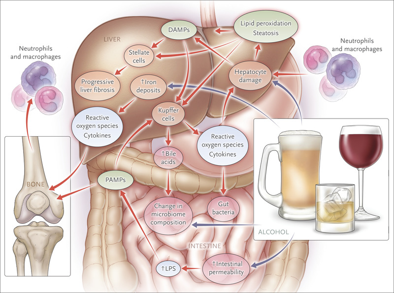 Alcohol Use in Patients with Chronic Liver Disease | NEJM