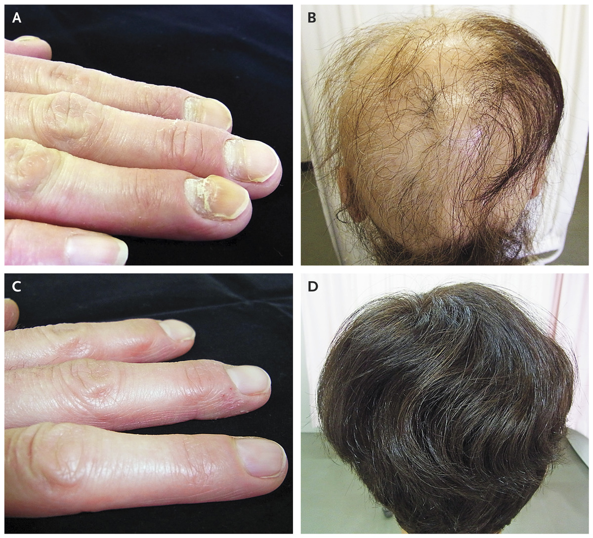 A 41 Year Old Woman Presented To The Endocrinology Clinic With Nail Changes That Had Occurred Over Several Months And Hair Loss Progressively