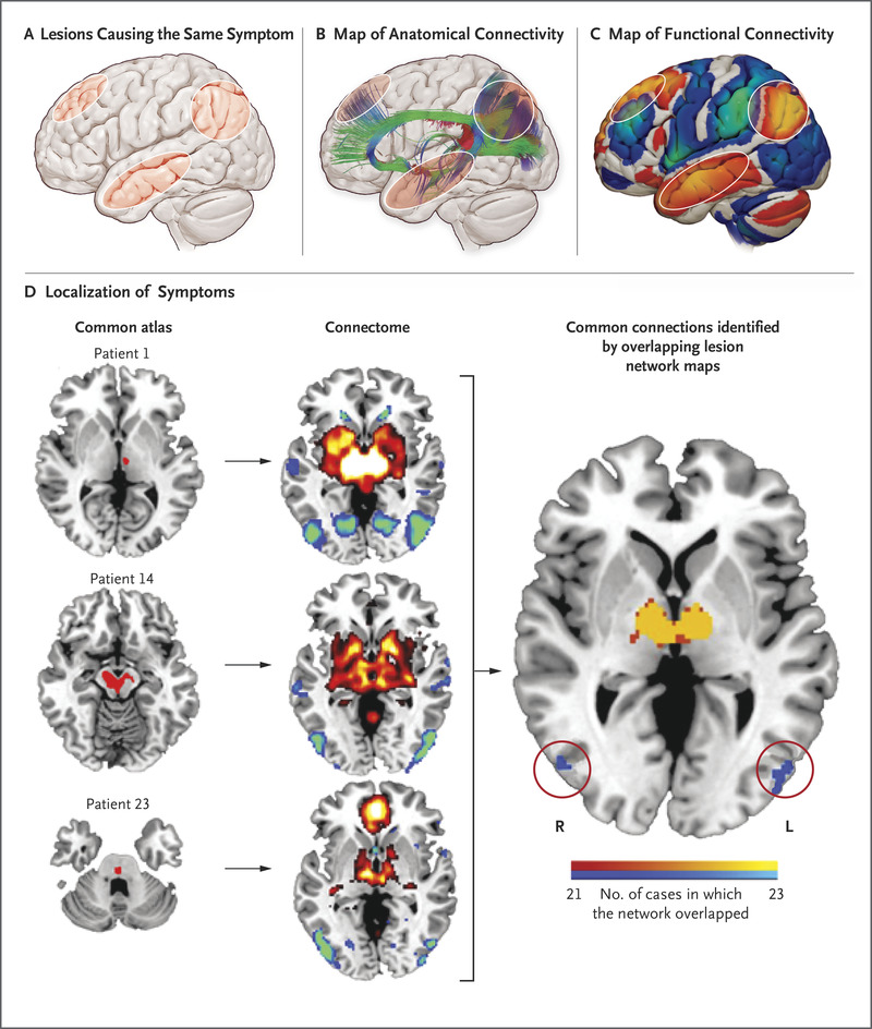 Mapping Symptoms to Brain Networks with the Human Connectome