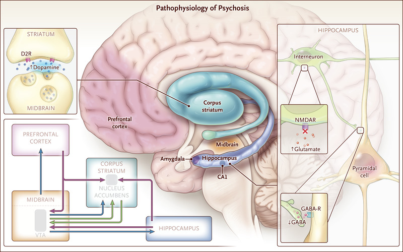 Psychotic Disorders Nejm