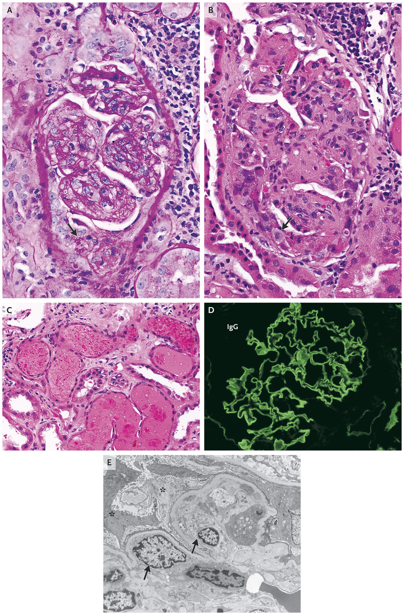 Case 24-2018: A 71-Year-Old Man with Acute Renal Failure and