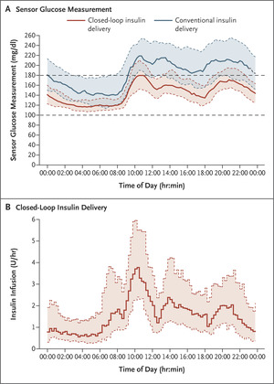 Closed-Loop Insulin Delivery for Glycemic Control in