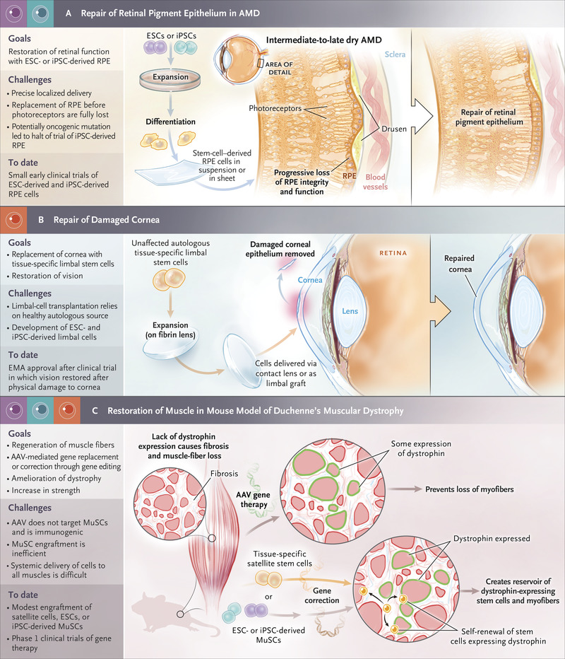 Stem Cells in the Treatment of Disease | NEJM