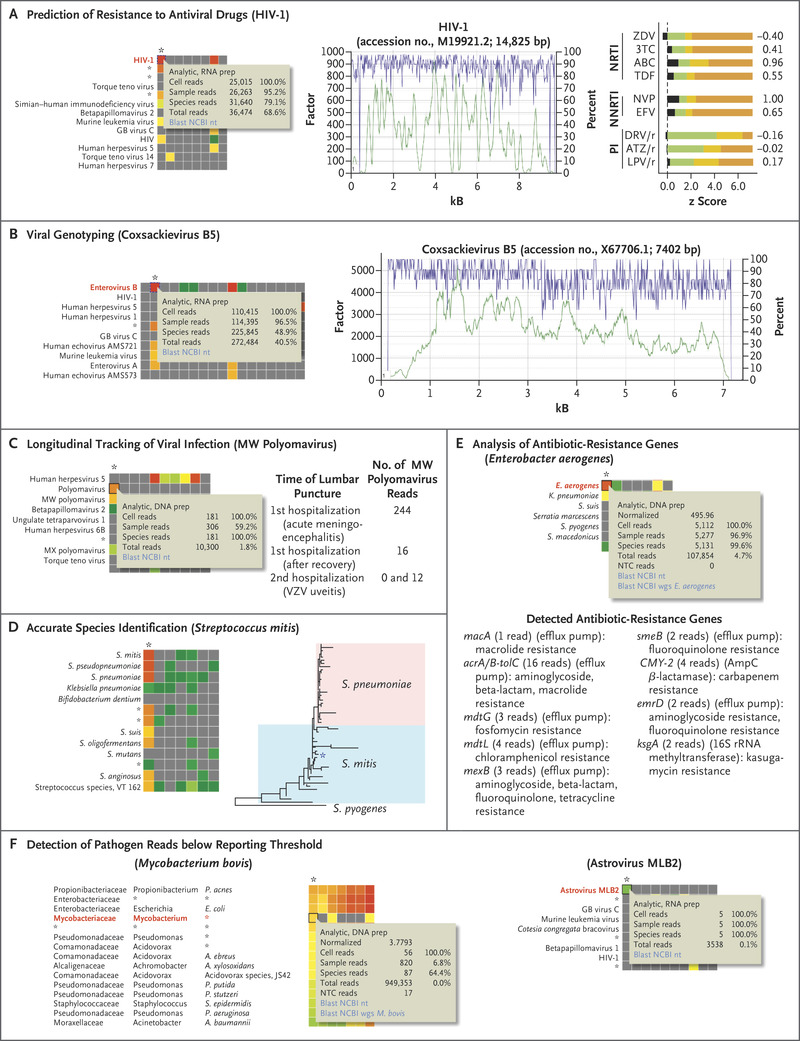 Clinical Metagenomic Sequencing for Diagnosis of Meningitis