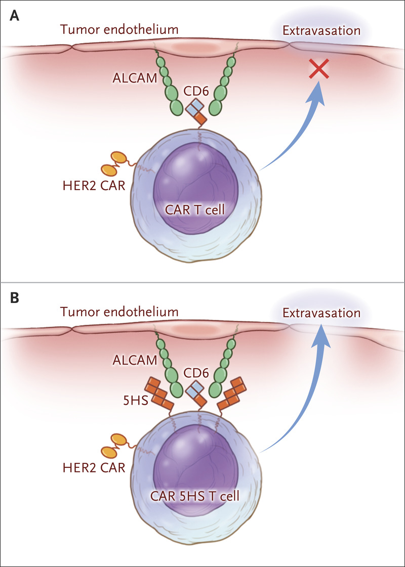 Steering Car T Cells Into Solid Tumors Nejm