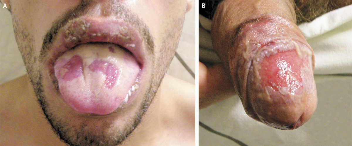 Oral and Genital Ulcers in Behçet's Disease | NEJM