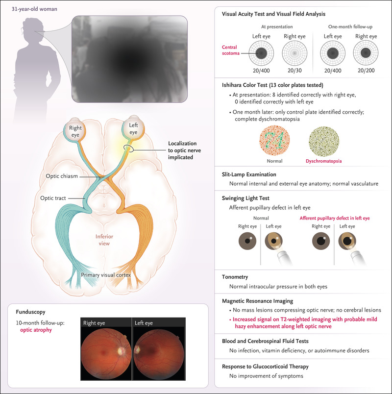 Case 21-2019: A 31-Year-Old Woman with Vision Loss | NEJM