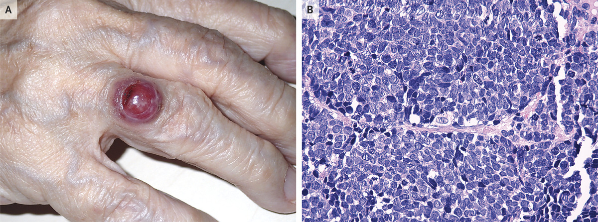Rare case of Merkel-Cell Carcinoma reported in NEJM