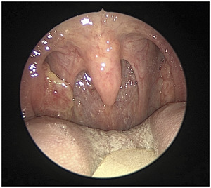 Images In Clinical Medicine: The New England Journal of Medicine