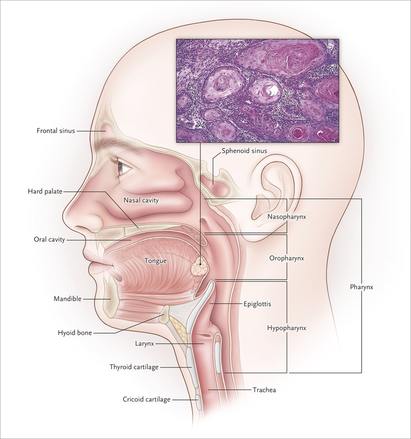 hpv related head and neck cancer symptoms