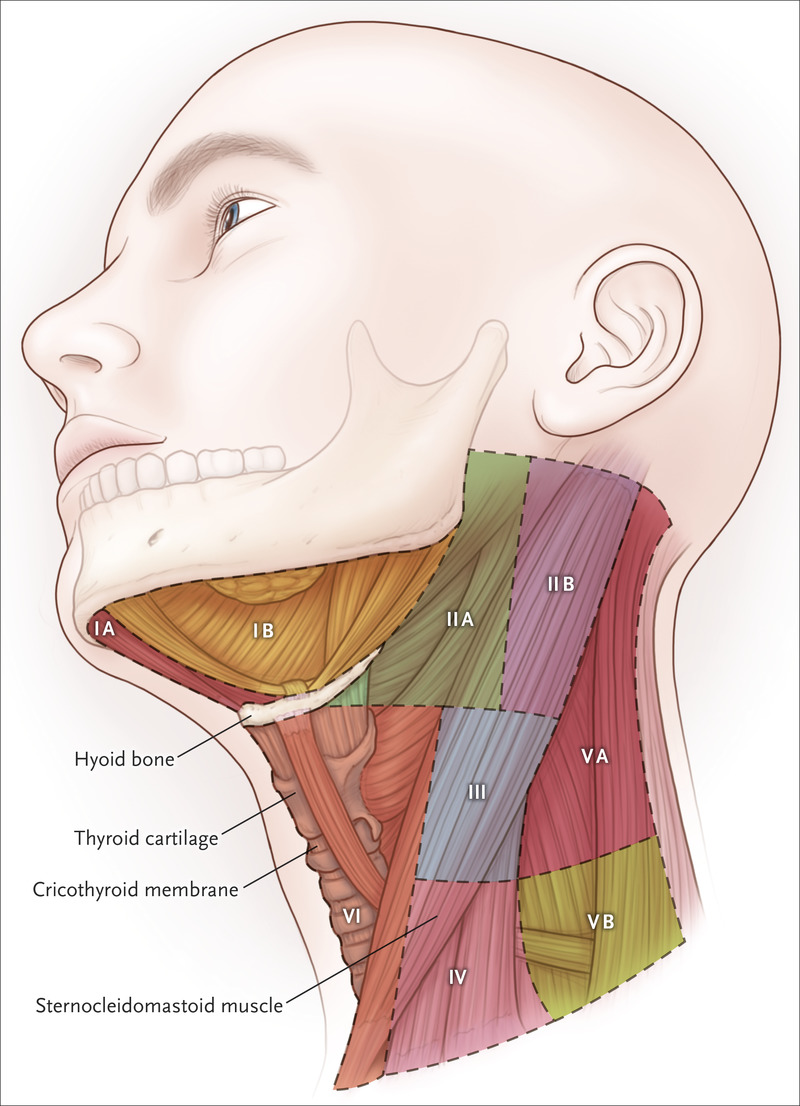 Head And Neck Cancer Nejm