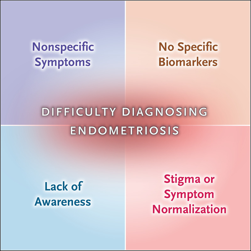 Endometriosis Nejm