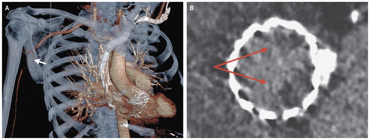 Axillary Artery Occlusion after TAVR reported in NEJM