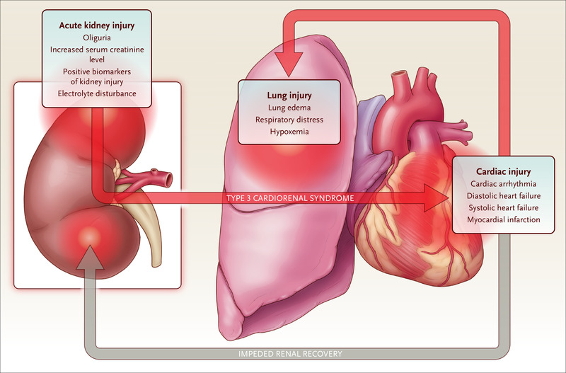 Cardiovascular Consequences Of Acute Kidney Injury Nejm