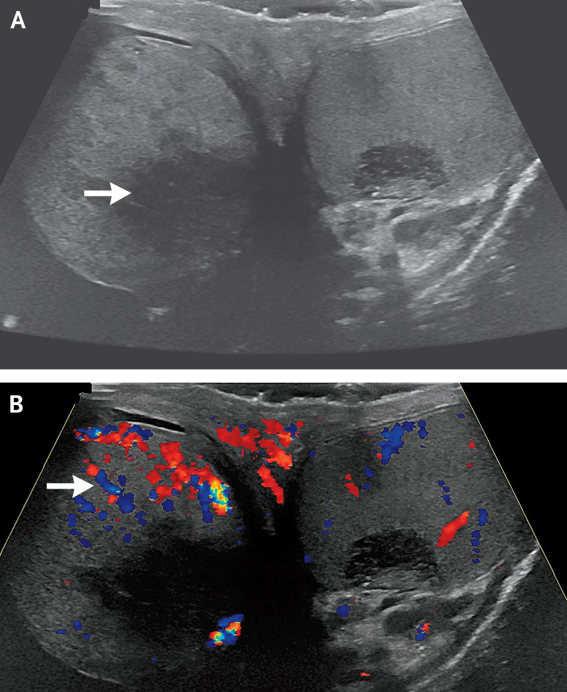 Case Challenge — An 84-Year-Old Man with Painless Unilateral