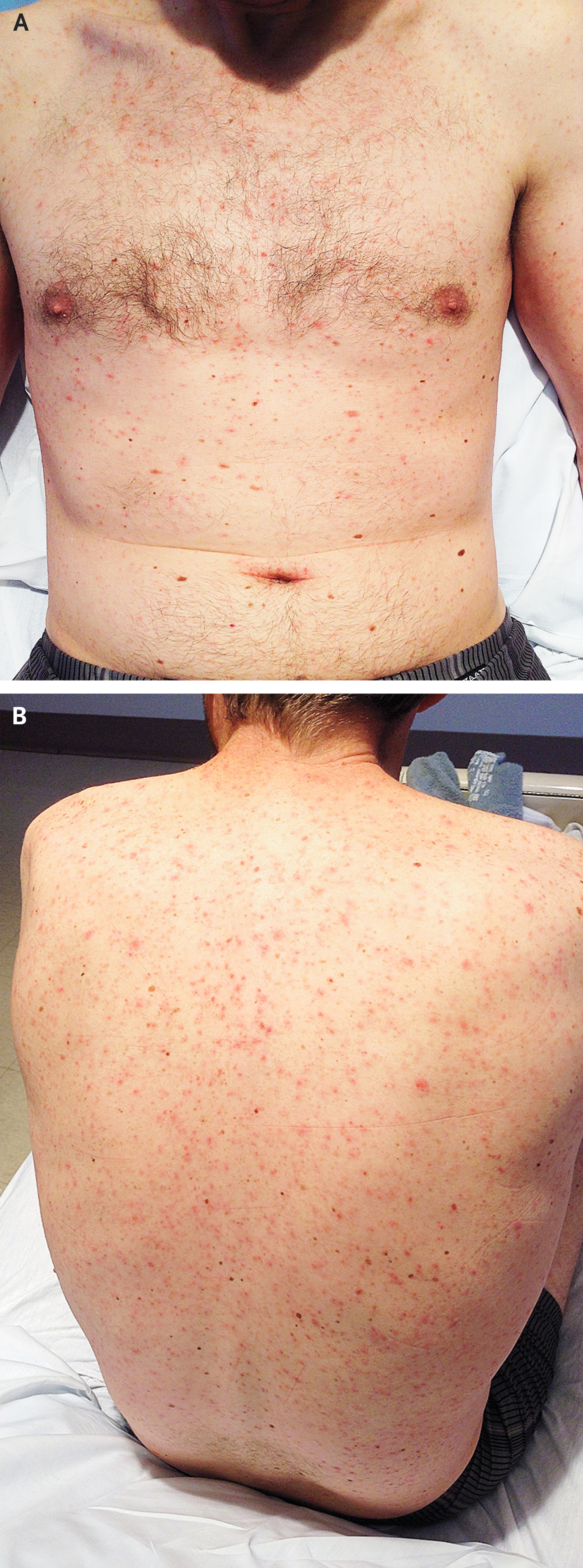 Case Challenge — A Man with Fevers, Rash, Pancytopenia, and