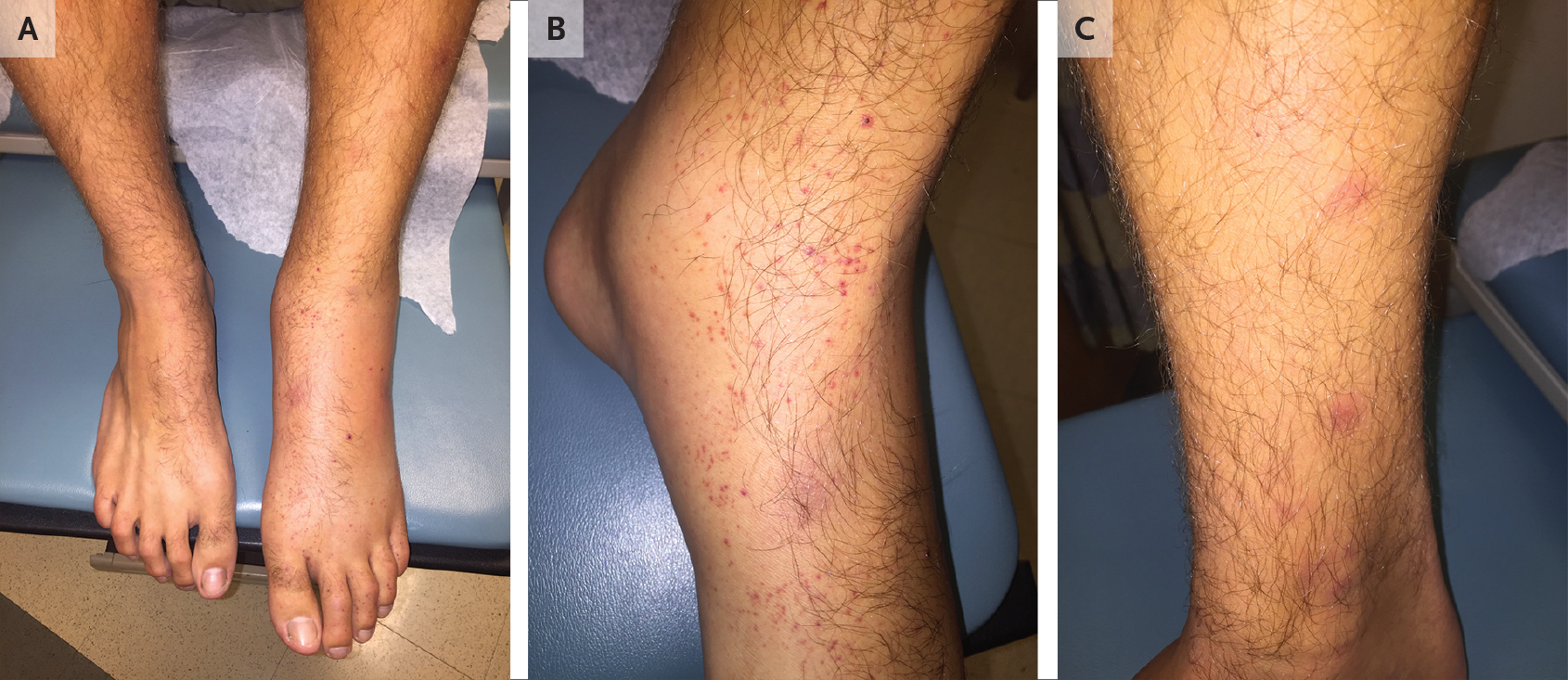 Case Challenge — A 20-Year-Old Man with Pain and Swelling of the ...